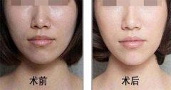 隆鼻假体取出2