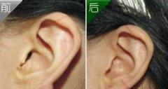 耳畸形对比图