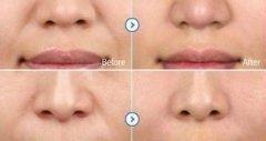 荆州祛除鼻唇沟的方法有