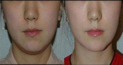 双下巴溶脂图片1