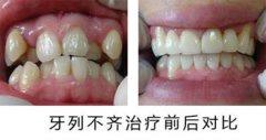 牙齿矫正对比照片1
