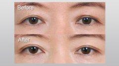 双眼皮修复手术怎么做?