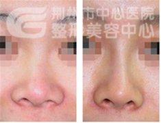 鼻孔缩小手术对比图