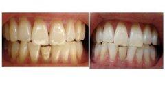 荆州牙齿美白方法有哪些?