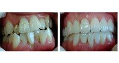 影响牙齿矫正价格的因素都有哪些?