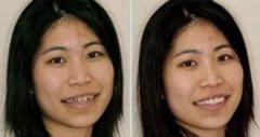 荆州种植牙和烤瓷牙哪个更好?