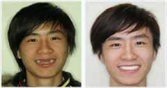 种植牙的治疗过程2个大的步骤