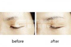眉毛种植后的护理怎么做
