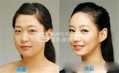荆州取颊脂垫手术过程