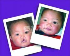 婴儿唇裂(兔唇)的治疗