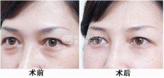 荆州提眉切眉手术效果怎么样?