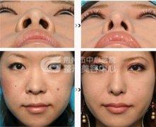 鼻头缩小方法有哪几种