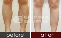 小腿吸脂手术在手术前需要准备什么?