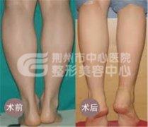 小腿吸脂减肥方法是如何进行的