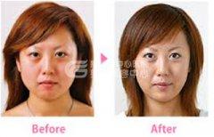 注射瘦脸针术有哪些众所周知的优势