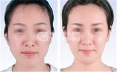 注射瘦脸针术效果会在多久后出现
