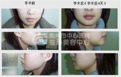 荆州垫下巴整形手术有哪些手术方法?