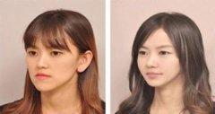 影响我们选择改脸型方法的因素是什么?
