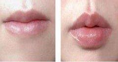 唇珠再造效果如何。