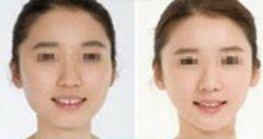 为何玻尿酸丰下颌如此受欢迎。
