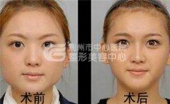 注射一次瘦脸针能持久吗?