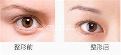 提眉术会有副作用吗?
