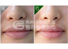 激光脱唇毛效果如何?