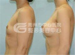 假体隆胸术后多久变软?