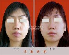 厚唇改薄手术安全性如何?