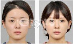 注射瘦脸针时需要注意什