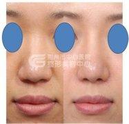 荆州隆鼻修复手术的价格