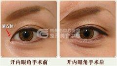 韩式开眼角手术多久恢复呢?