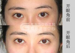 开眼角手术对眼睛是否有伤害呢?