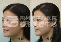 自体软骨隆鼻的优势有哪些?