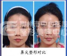 荆州玻尿酸隆鼻多少钱?