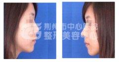 假体隆鼻手术是否安全呢?