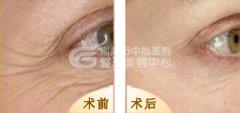 眼部除皱的方式有哪些?