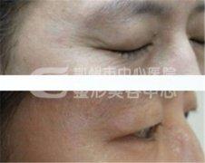 荆州眼部除皱有什么优势呢?
