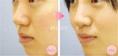 厚唇改薄术应该如何护理?