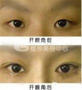 开内眼角手术有无风险呢?