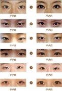 韩式开眼角手术的效果怎么样?