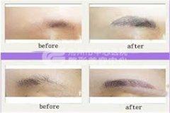 纹眉的方法有哪些?效果怎