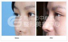 隆鼻手术之前需要注意哪些问题?
