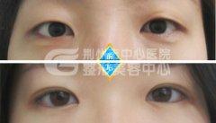 开外眼角手术的安全性如何?