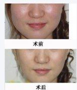 下颌角整形术后应该如何