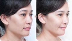 荆州韩式祛眼袋手术多少