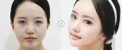 面部吸脂手术安不安全呢
