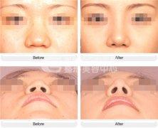 鼻头缩小术有什么优势呢?