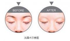 激光洗眉有哪些优势呢?