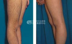 激光脱腿毛有无副作用呢